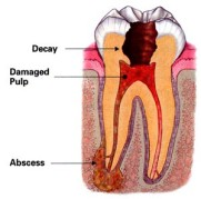 columbus-root-canal-treatment-300x297